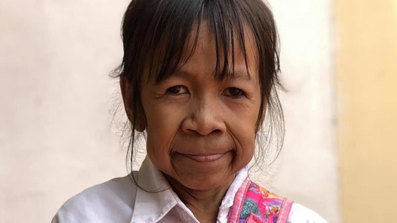 10-Jährige sieht aus wie alte Frau: Bo Rakching leidet