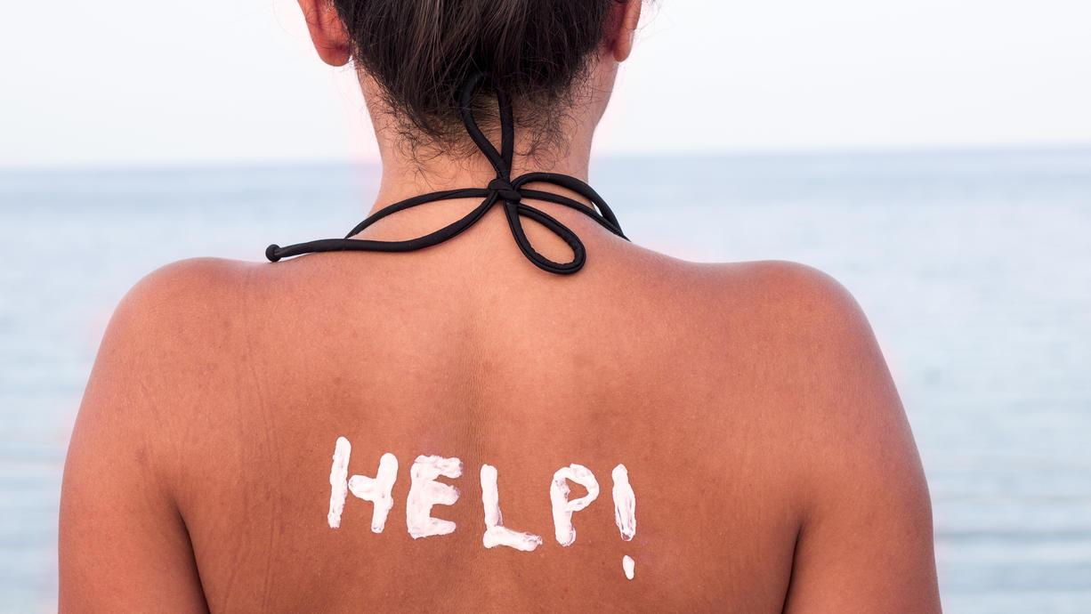 Welche Hausmittel helfen wirklich dabei, die Haut nach einem Sonnenbrand zu kühlen und zu desinfizieren? Die Dermatologin Dr. Uta Schlossberger gibt Tipps.