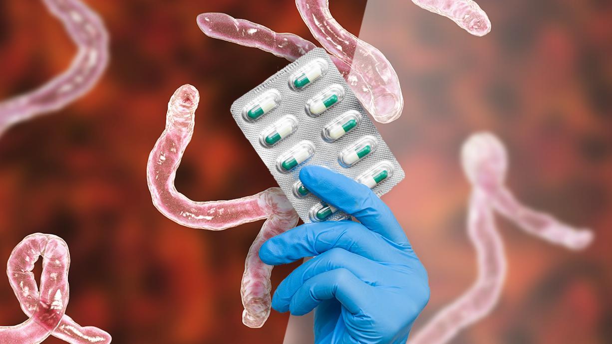 Impfstoffe gegen das Coronavirus gibt es mittlerweile einige, ein wirksames Medikament gegen Covid-19 allerdings immer noch nicht. Die Berliner Charité möchte das nun ändern und prüft den Einsatz eines Bandwurmmittels.